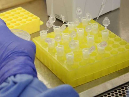 Pernambuco registra menor número de casos de coronavírus em 24 horas desde 5 de maio