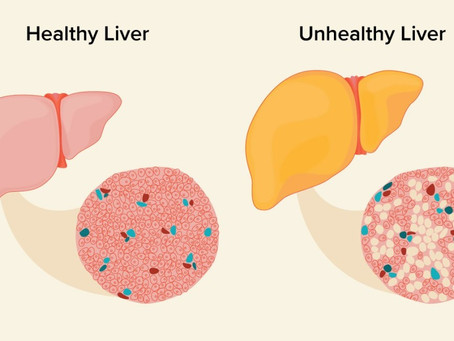 Fatty liver: Know it well