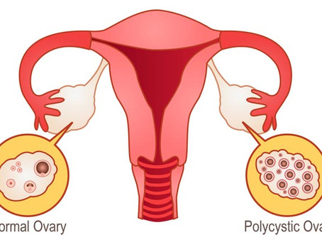 Polycystic Ovarian Syndrome (PCOS) & you