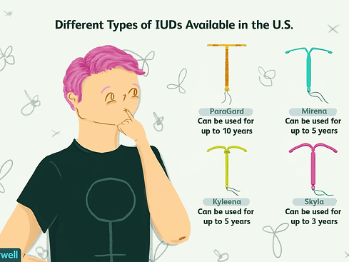 4 types of IUD.png