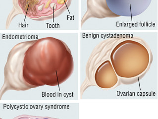 What causes ovarian cysts?