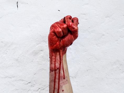 Darkest Day: The Oct 6, 1976 Massacre In Bangkok, Thailand