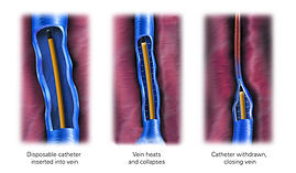 Endovenous Laser