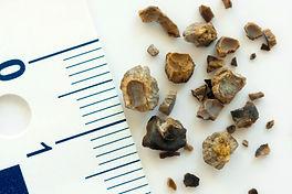 kidney-stone-image.jpg