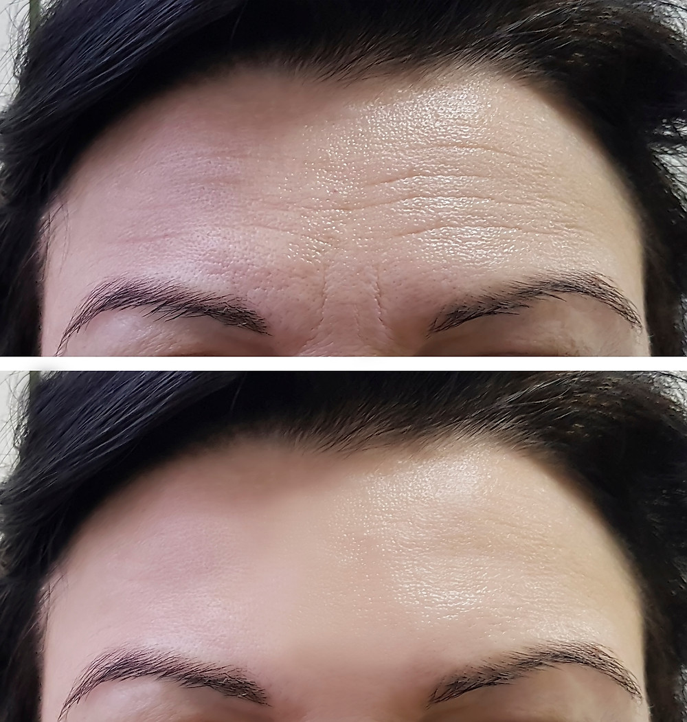 Before and after forehead lines anti-wrinkle treatment