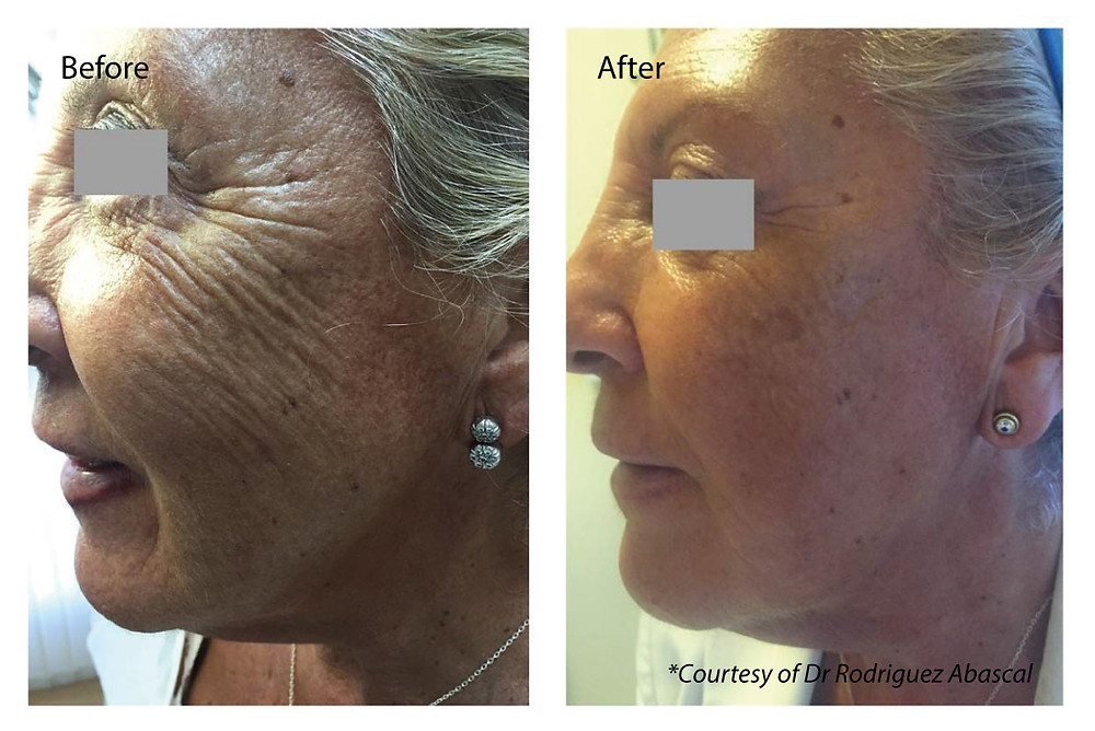 'Before and after' of a Profhilo face treatment