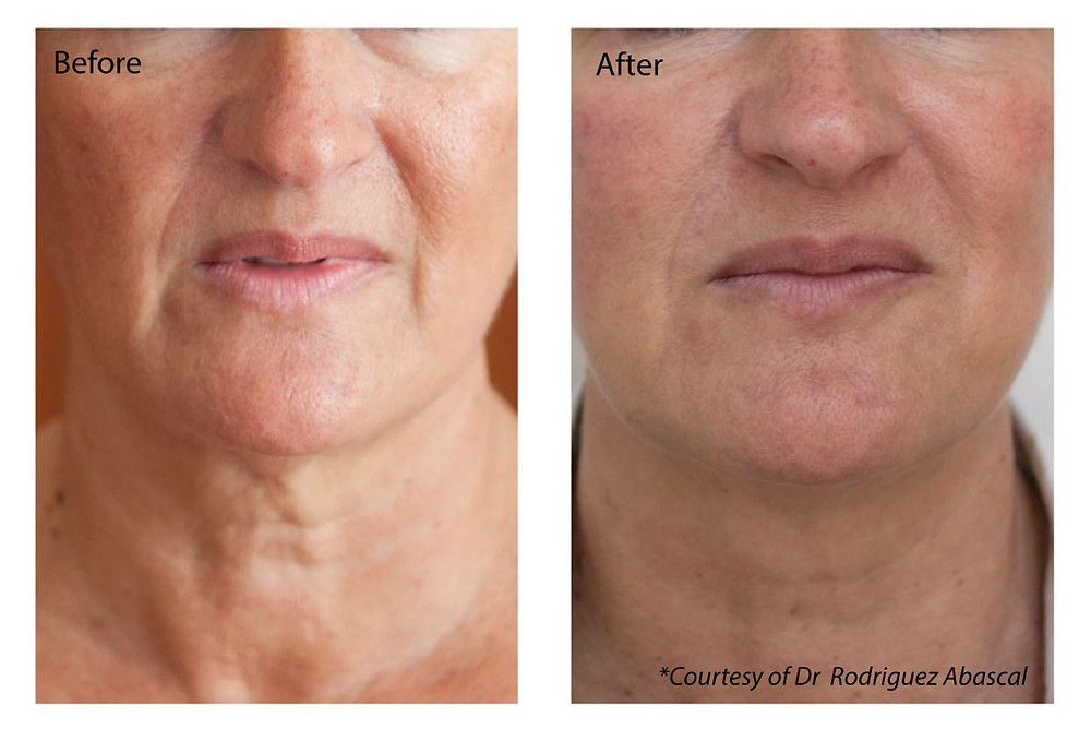 Profhilo softens fine line and wrinkles as well as tightening skin