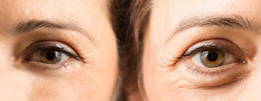 Before and after crows feet anti-wrinkle treatment