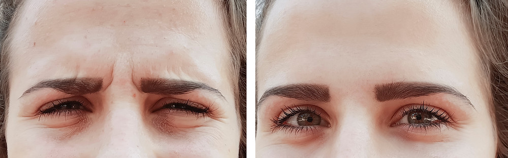 Before and after frown lines anti-wrinkle treatment