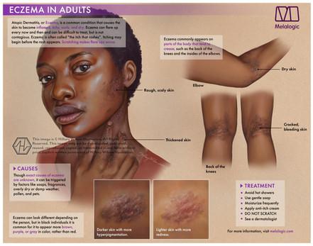 Eczema-01watermark.jpg