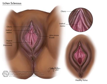 vulvovaginal lichen sclerosus