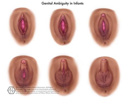 Genital ambiguity-01.jpg