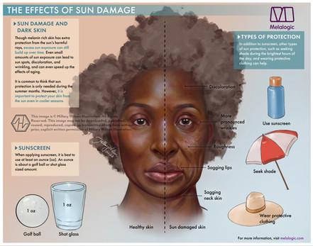 Sun Damage-01 watermark.jpg