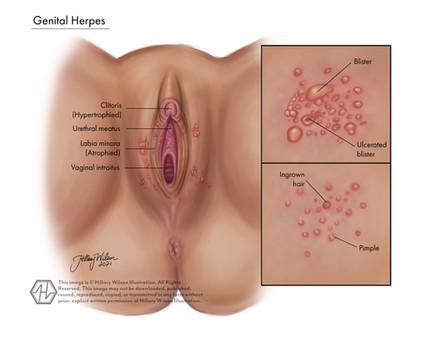 Genital Herpes Clitoral Hypertrophy Variation