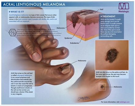 Acral Lentiginous Melanoma-01watermark.j