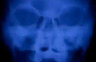 X-Ray animation