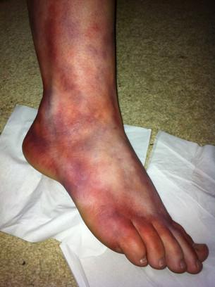 kaitys foot.jpg