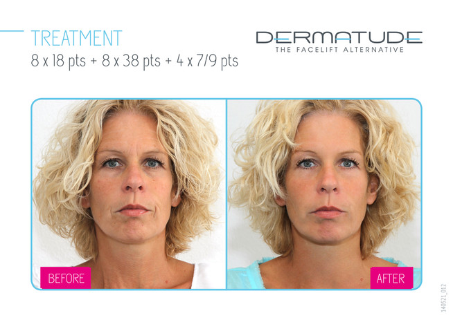 012-facial-front.jpg