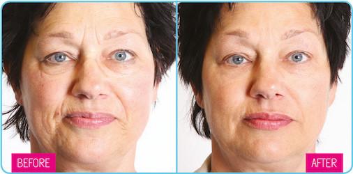 dermatude-facelift-before-after43.jpeg