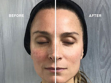 cryoskin-face.before.after.jpg