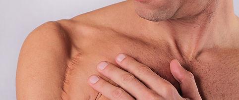 Men.scar.jpg