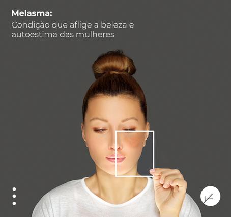 Melasma: Condição que aflige a beleza e autoestima das mulheres