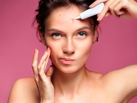 Acne está relacionada com disfunções hormonais, higiene e alimentação