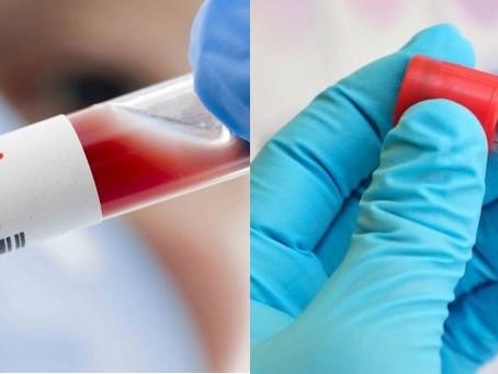 Secretaría de Salud confirma primer caso simultáneo de COVID-19 e Influenza A H1N1 en México.