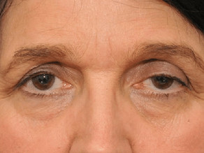 Ask the Expert: What can be done about droopy eyelids?