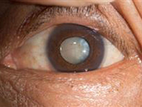 Ask the Expert: If I have cataracts surgery, will I need glasses afterward?