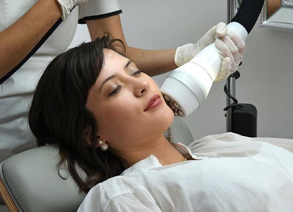 Crioradiofrecuencia Facial Pack x 4 sesiones