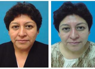 Rejuvenecimiento facial: Beneficios de la aplicación de plasma rico en plaquetas