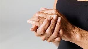 Artrosis ¿Qué es?