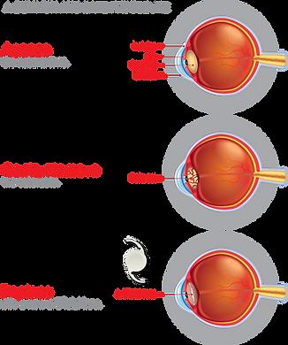 Cataract_Surgery_Process_Image_04 (1).pn