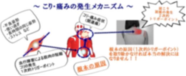 肩こり腰痛のメカニズム