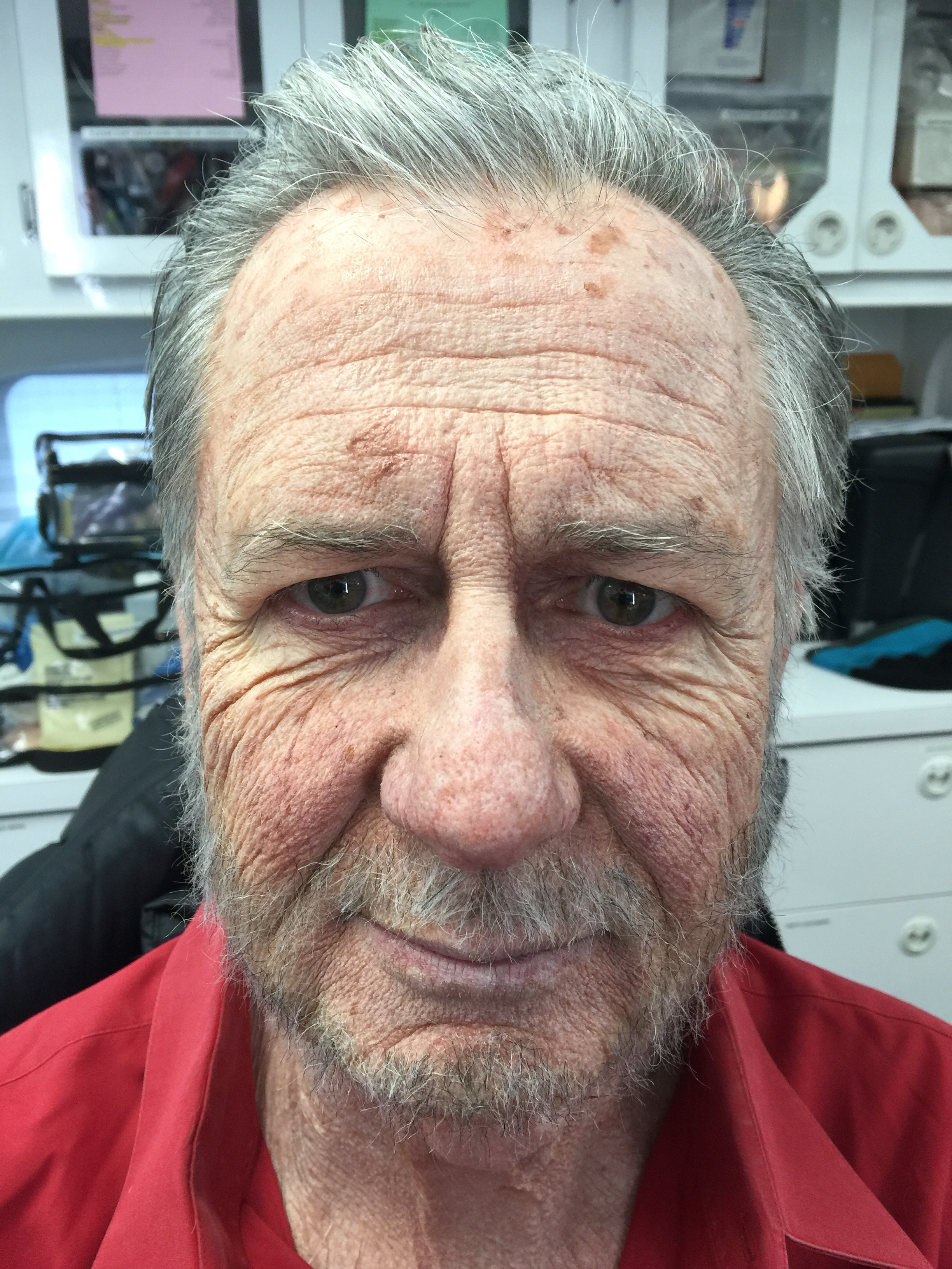 Old Man Aging After