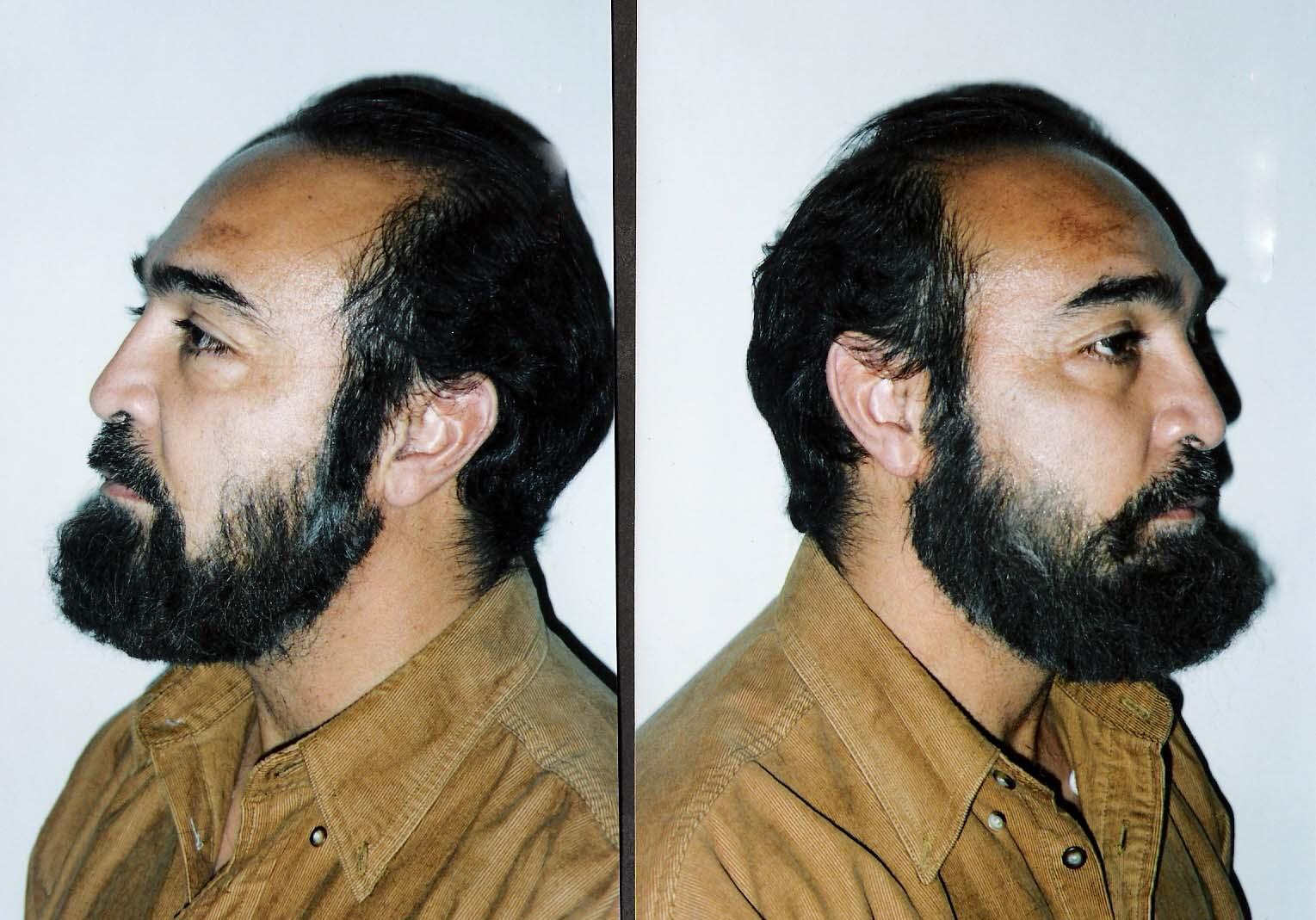 Hand laid full beard