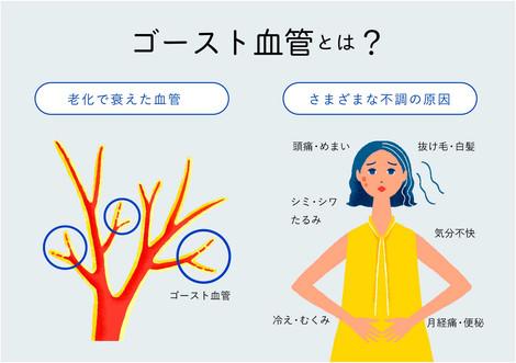 e_UPLIFE02.jpg