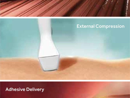 Latest update: Five year results for Venaseal Glue now available