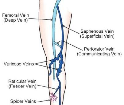 Understanding varicose veins