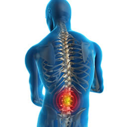Suffer From Chronic Back Pain?     Part One: 6 Steps to Prevention
