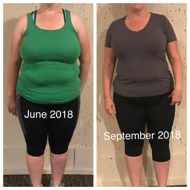 Kirsten.Front.beforeAfter.9.2018.jpg