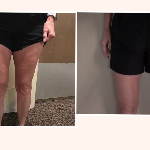 Before.After.Thigh.12weeks.jpg