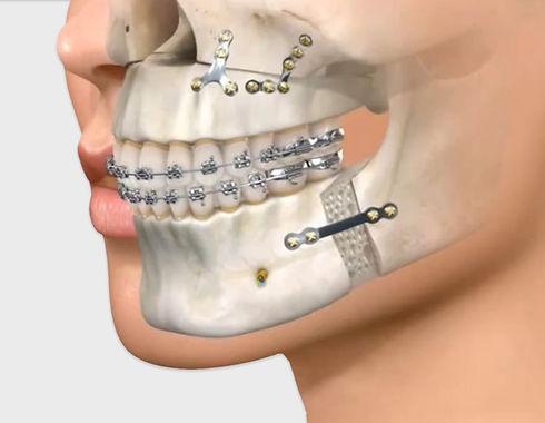 cirugia-maxilofacial-en-Costa-Rica-1.jpg