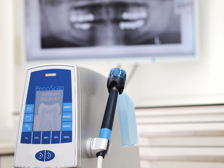 PerioScan für Parodontalbehandlungen