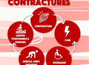 Contracture Resources