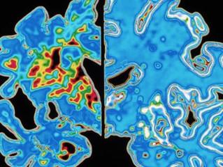 Teste de labirinto virtual ajuda a prever Alzheimer décadas antes de sintomas