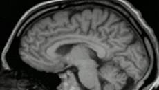 Perfil molecular define agressividade de tumor cerebral