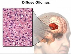 glioma-300x227.jpg