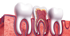 How Long Will A Root Canal Procedure Take?